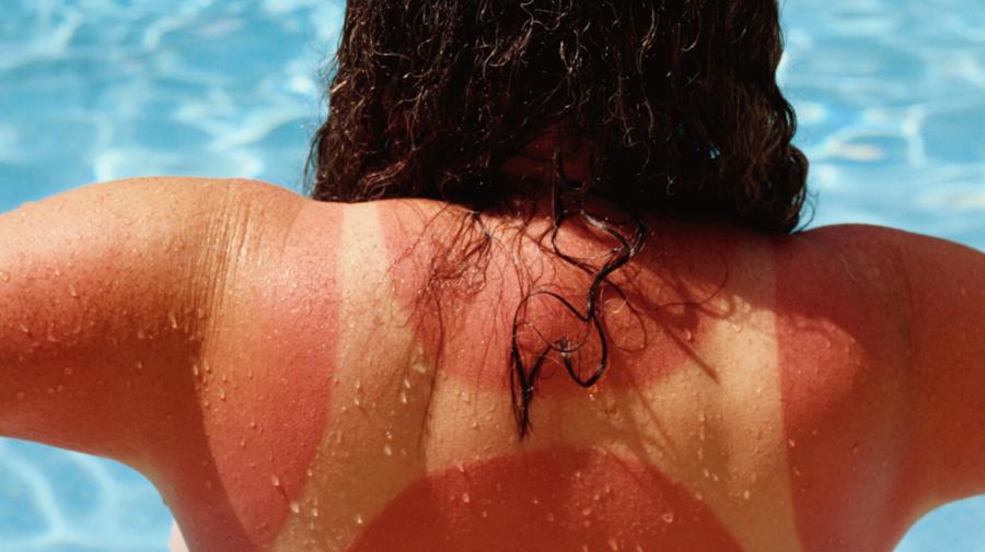 Te-a ARS soarele prea tare? Aceste 6 sfaturi te vor AJUTA să ameliorezi durerea