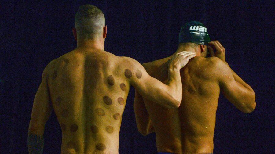 GALERIE FOTO De ce unii sportivi de la Jocurile Olimpice au pe corp niște pete rotunde ca niște vânătai?