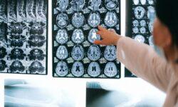 """Cercetătorii vor să """"inunde"""" creierul uman cu microcipuri: Ce boli ar putea trata?"""