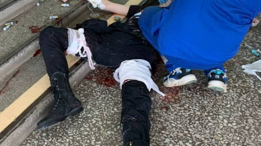 UPDATE FOTO +18! Atacatorul de la universitatea din Perm ar fi viu. Acesta este internat în spital în stare gravă